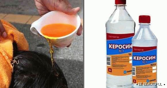 kerosene from lice and nits
