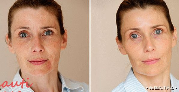 Effect after face photo rejuvenation